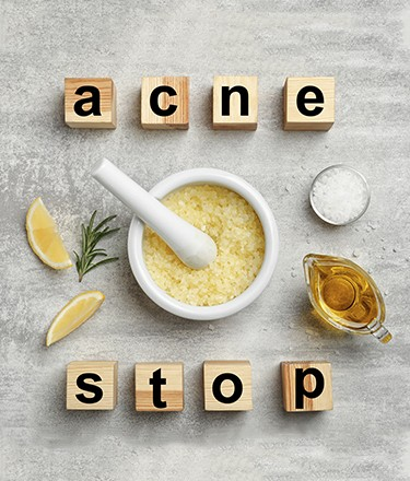 Struggling With Acne_Main