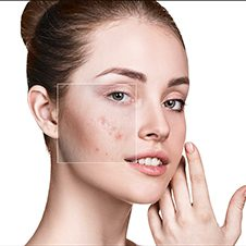 Causes & Risk Factors for Acne